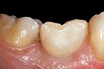 Dental Visionist. FEM Modell