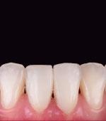 Delicate anterior treatments with nonprep veneers made of hybrid ceramic