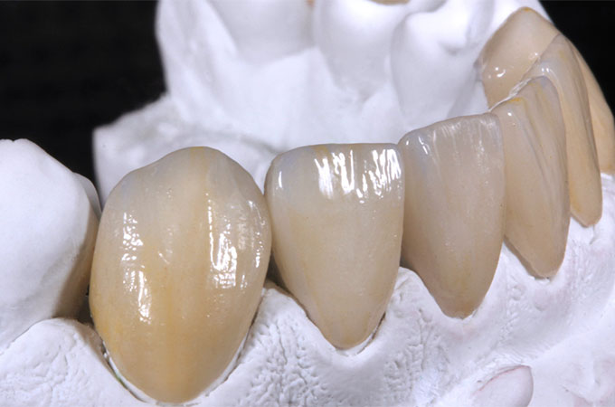 Veneers and full crowns made with VITA AMBRIA and VITA LUMEX AC