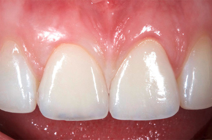 The partial crowns cemented in the mouth