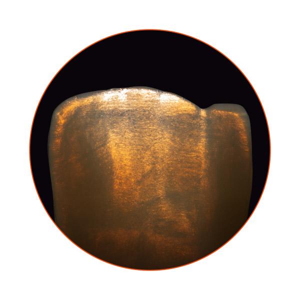 Jeu de couleurs brillant d'une restauration en céramique pressée VITA