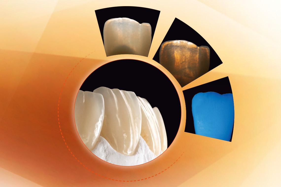 Anterior tooth crowns made of VITA Press Ceramic, plus photos of its photo-optical properties