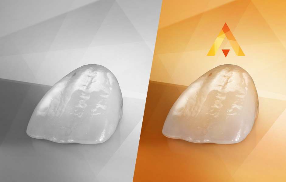 Anterior tooth crown made of VITA AMBRIA Press Ceramic