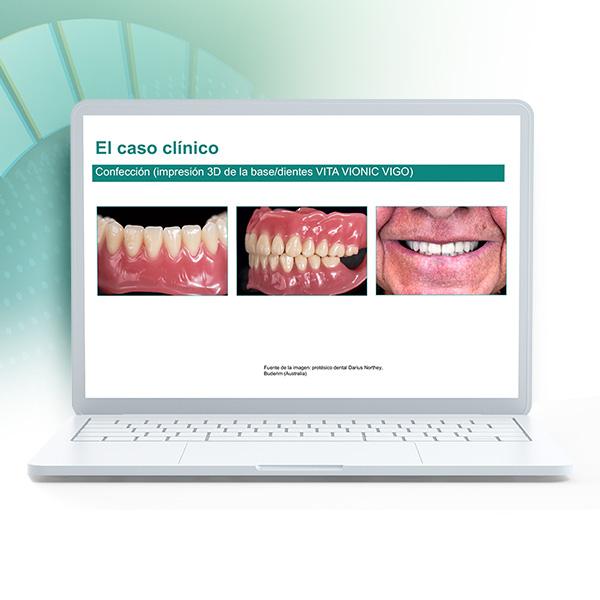 """Portátil que muestra en la pantalla la presentación del curso de éxito """"Prótesis digital para iniciadores""""."""
