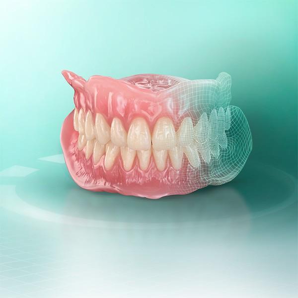 Prothèse amovible fabriquée de manière numérique à partir du matériau VITA VIONIC