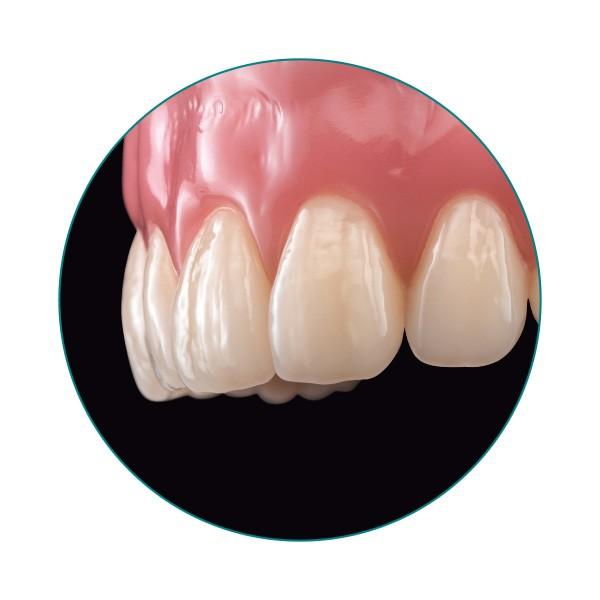 El diente VITA VIONIC VIGO en la prótesis.