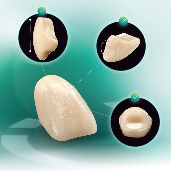 VITA VIONIC VIGO tooth from different perspectives
