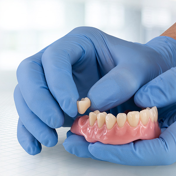 A prefabricated tooth is bonded into a digitally fabricated denture base.