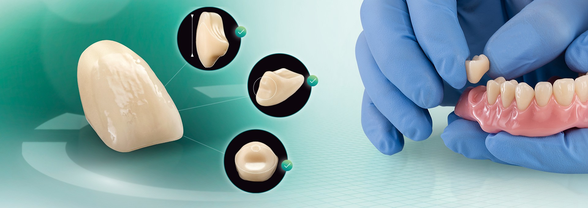 El diente VITA VIONIC VIGO desde distintas perspectivas y una prótesis confeccionada digitalmente.