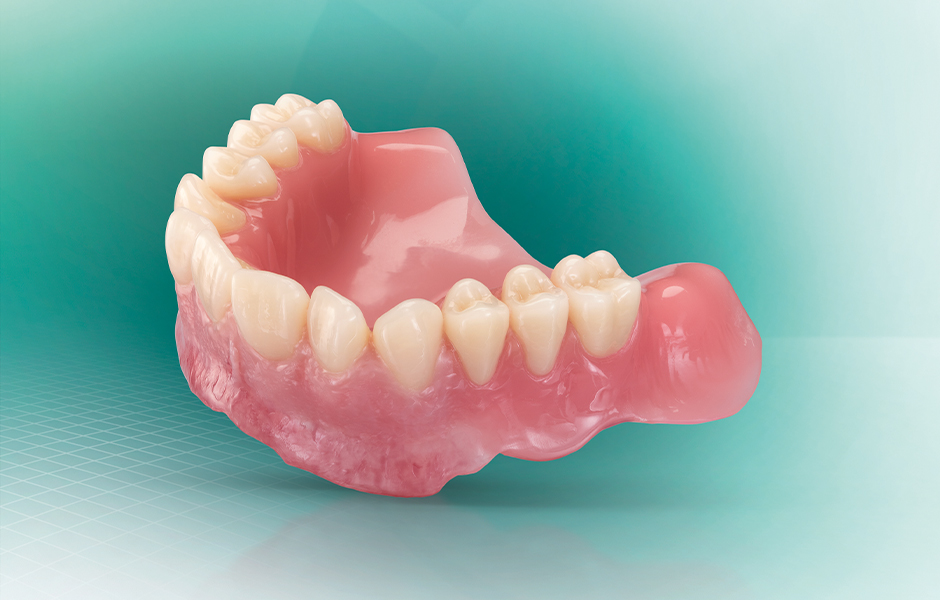 A digitally fabricated denture made of VITA VIONIC system components