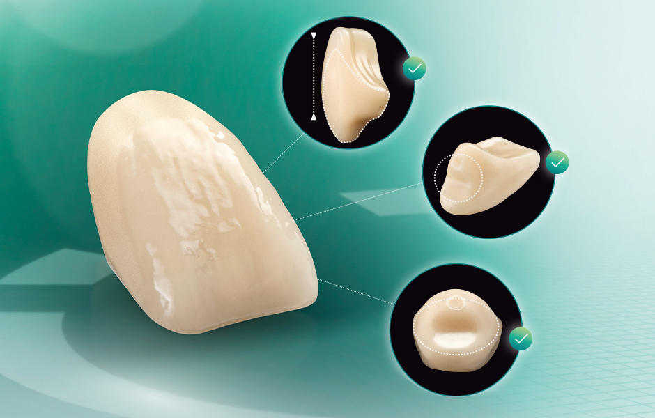 The denture tooth VITA VIONIC VIGO from different perspectives