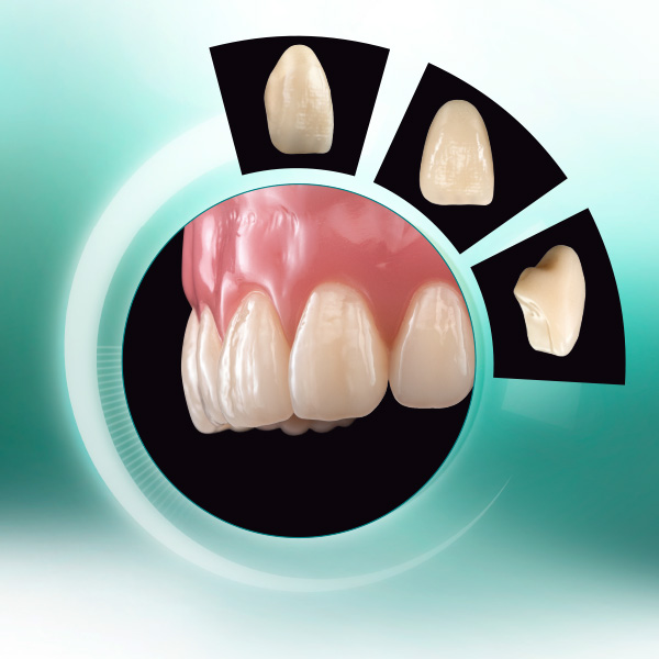 The denture tooth VITA VIONIC VIGO from different perspectives and in the denture