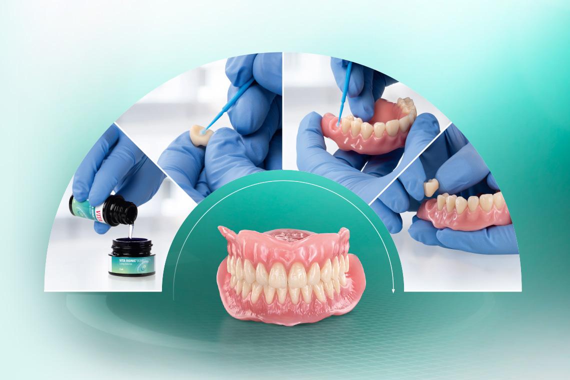 Proceso de adhesión de los dientes preconfeccionados VITA VIONIC VIGO.