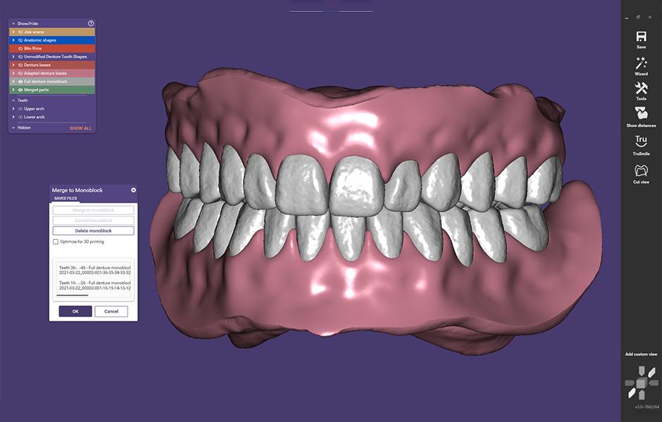 Vista en pantalla de una prótesis dental en el sistema CAD.