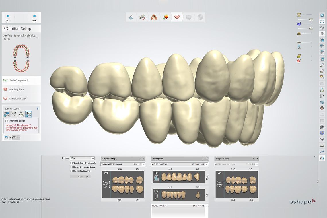 Cuatro capturas de pantalla del software 3Shape con algunos de los numerosos montajes de la biblioteca de VITA.
