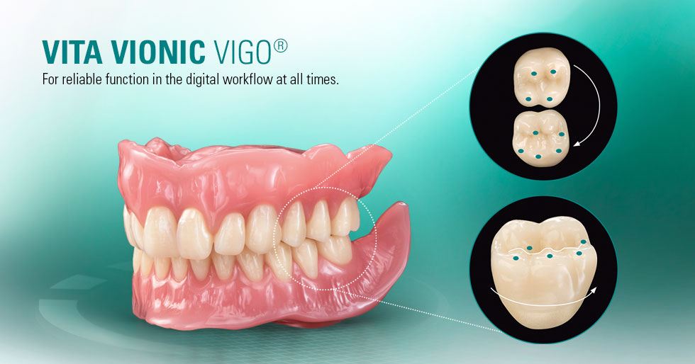 VITA VIONIC VIGO®. Digital Dentures