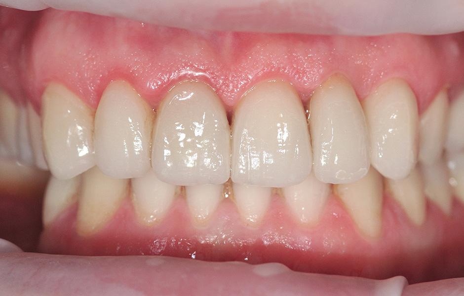 Le prothésiste dentaire Okke Kamps fixe des dents VITA VIONIC VIGO dans une base prothétique