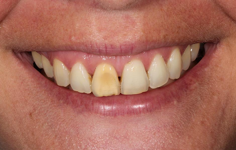 Le prothésiste dentaire Okke Kamps vérifie sur l'ordinateur le montage virtuel des dents