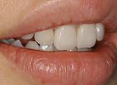 Patient case from Dr. Feng Liu