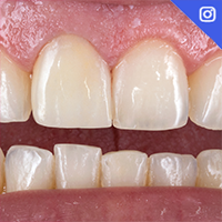 Easy and reliable tooth shade determination and material selection!