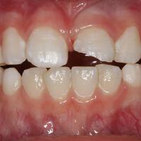 Dr. Angela Brago, Dr. Yulianna Enina. Treatment of anterior tooth trauma with hybrid ceramics