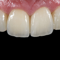 Marcio Breda, Dental Technician. Systematic shade reproduction using VITA VMK Master