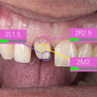 Dr. José Gabriel Martínez. Zuverlässiger Workflow für Zahnfarbbestimmung und -reproduktion