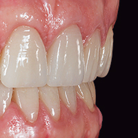 Monolithic, time-efficient front tooth restoration