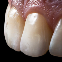 Dr. Stas Belous. Optimum light dynamics in the front, due to highly esthetic glass ceramic