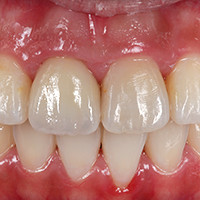 Dr. Mon Li, Sally Hsieh, Dental Technician. Lifelike front tooth reconstruction made of polychrome feldspar ceramics