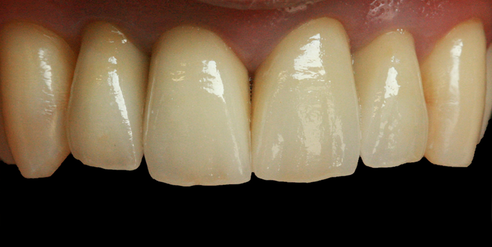 VITA patient case Urszula Młynarska. The crowns directly following cementation.