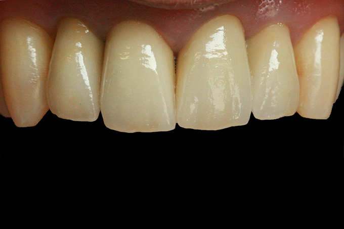 Step 10 The crowns directly following cementation