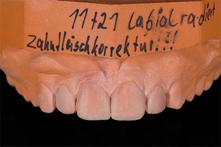 Step 3 Zahnfleischkorrektur