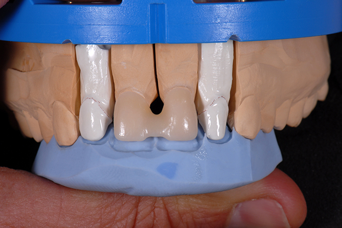 Blocked zirconium dioxide crowns