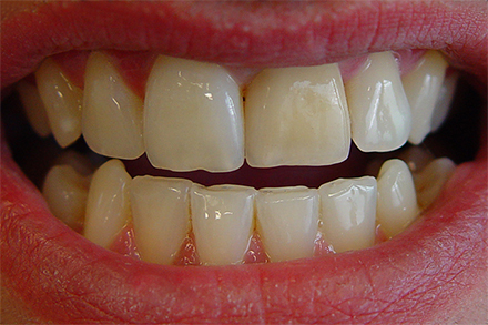 Step 1 This discrepancy is often caused by incorrect tooth shade selection.