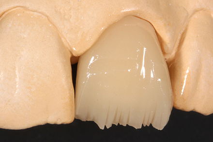 VITA ENAMIC Restoration prepared for individualization.