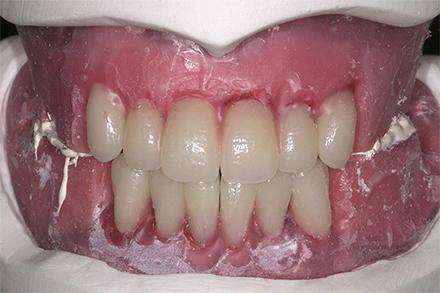 Aufstellung der Zähne 32 und 42 in die entstandene Lücke.