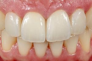 Cas clinique Marcio Breda : se contrôle en bouche