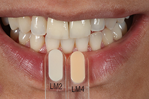 Patient case Marcio Breda: Tooth Shade Determination