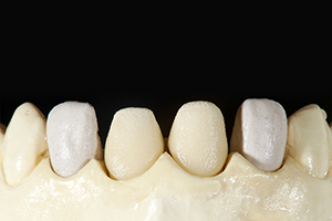 Patient case Marcio Breda: Veneers on the master model