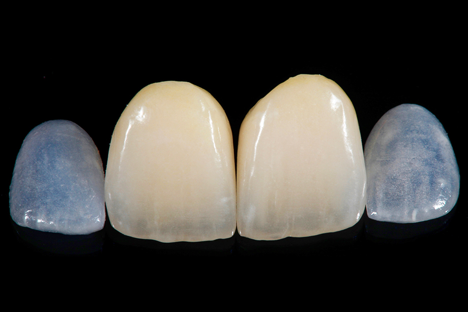 Patient case Marcio Breda: Producing the crowns