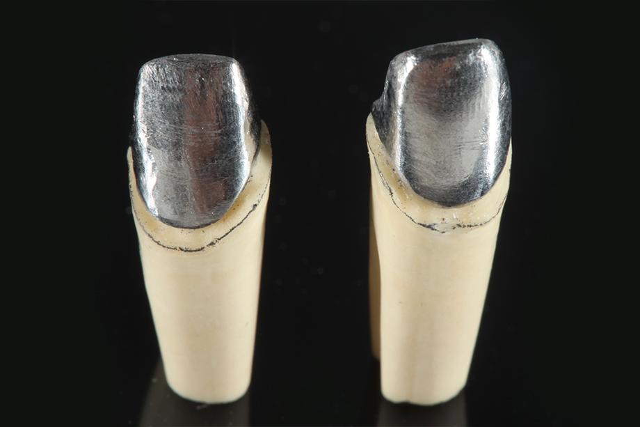 Cas clinique Marcio Breda: chapes métalliques