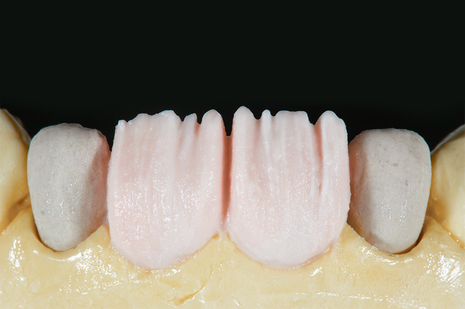 Patient case Marcio Breda: First dentin layer