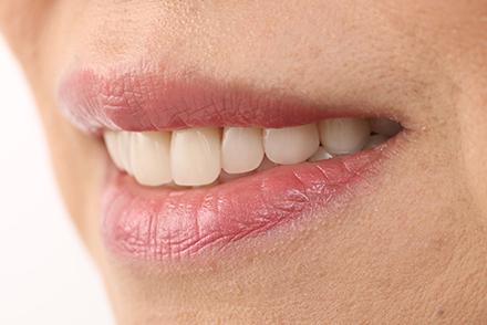 Ästhetisch und funktional umgesetzt mit VITAPAN® Frontzähnen und VITA LINGOFORM® Seitenzähnen.