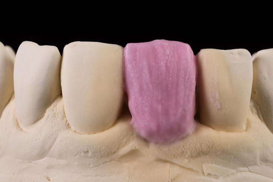Schichtung des Dentinkerns