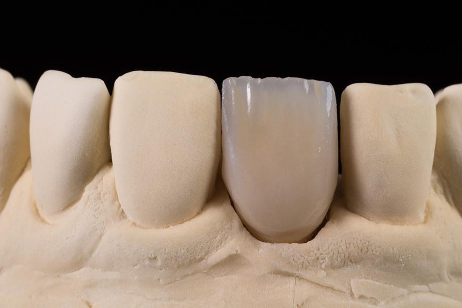 Ergebnis nach dem 1. Dentinbrand