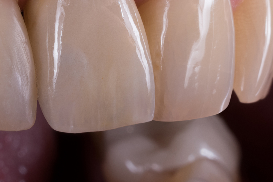 Detailed lateral view of the maxillary incisors