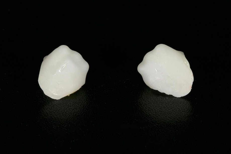 Patient case from Amos Harting, USA. Manufacturing of the zirconia cap.