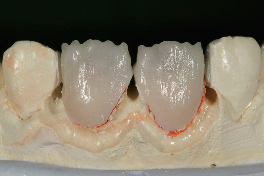 Patient case from Amos Harting, USA. Fired CHROMA PLUS.