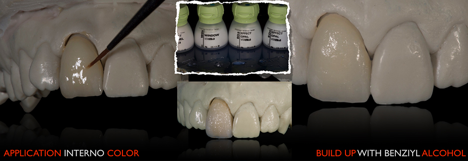 Patient case: Individual anterior crown of VITAPM®9.  Francesco Ferretti. Rome, Italy.